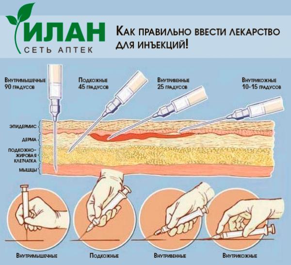 Как правильно ввести лекарство для инъекций! - Новости - Поиск лекарства в аптеках Москвы Илан - лекарства по низким ценам купит